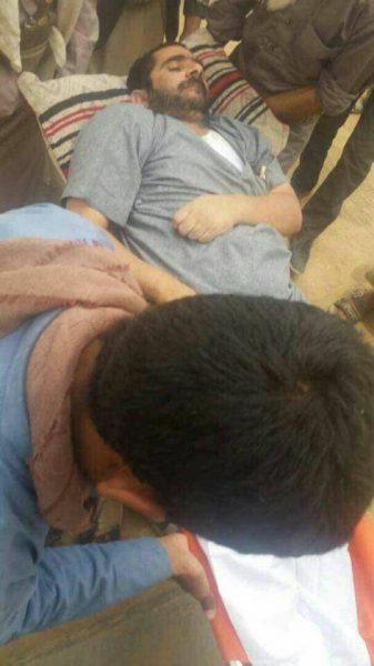 بعد إصابته بالشلل التام جراء التعذيب مليشيا الحوثي تطلق سراح مختطف في سجونها