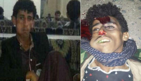 يحدث في صنعاء… القتل من اجل السرقة..!!