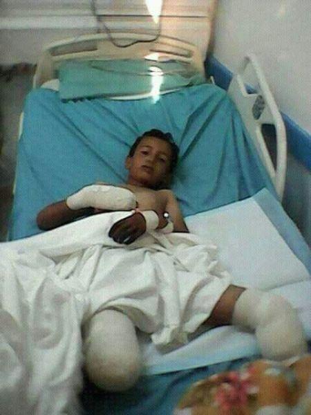 إصابة طفل في محافظة البيضاء جراء انفجار لغم ارضي زرعته المليشيا في الطريق