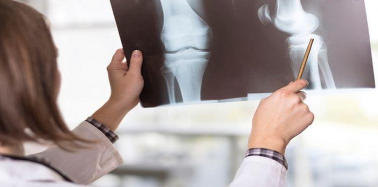 """""""أدينوسين"""" جزىء يمنع تطور هشاشة العظام .. اكتشاف علمي جديد"""