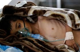 ارتفاع حصيلة الوفيات بسبب الكوليرا في اليمن إلى 989 حالة