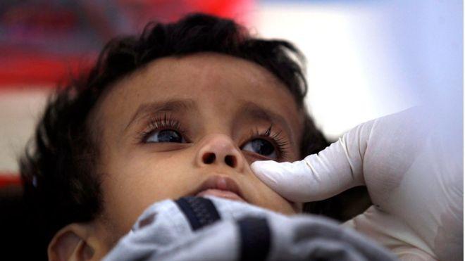 مسؤولون دوليون يشيدون بالإغاثة المقدمة من السعودية لمكافحة الكوليرا في اليمن