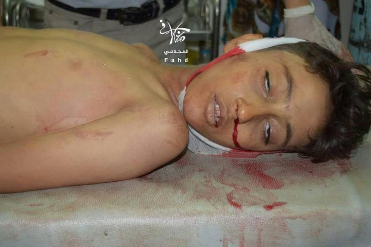 مقتل طفل برصاص قناص المليشيات شمال شرق مدينة تعز