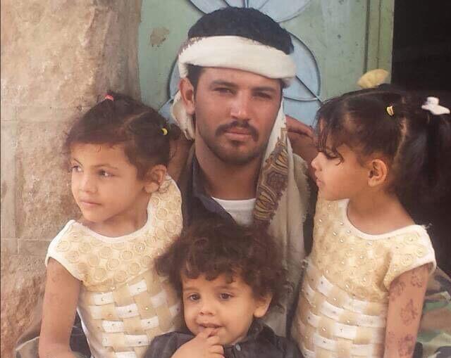"""شاهد بالصورة…مليشيا الحوثي تعذب مواطنا بصورة """"بشعة""""حتى الموت"""