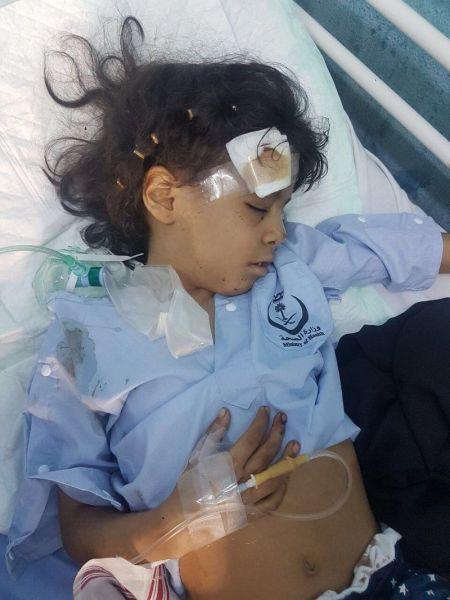 اصابة امرأة يمنية وطفلتين سعوديتين في مقذوف للمليشيات الانقلابية على مدينة العارضة