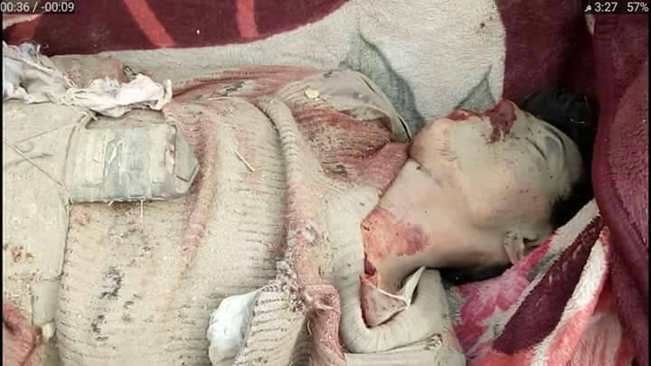 مقتل واصابة 12 شخص من اسرة واحدة في غارة خاطئة للتحالف العربي قرب مدينة صعدة