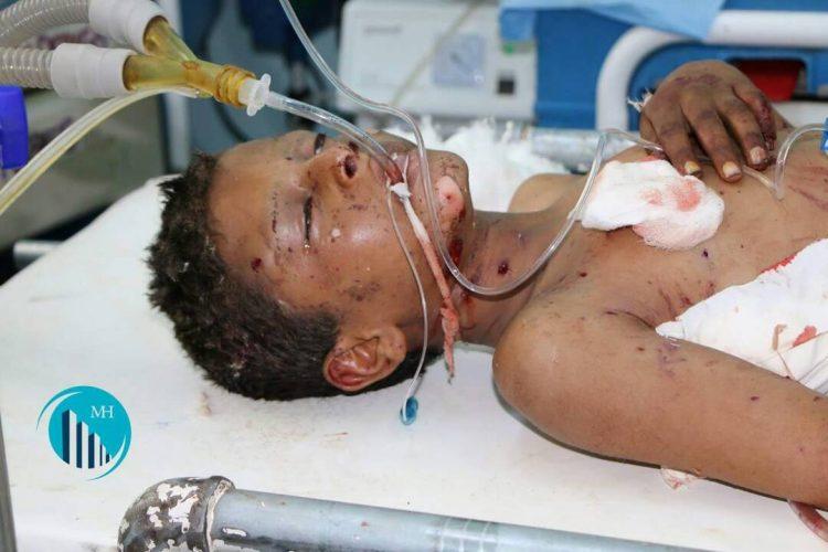 مقتل طفل وإصابة 3 اخرين بانفجار لغم أرضي في منطقة الحاني شمالي مارب