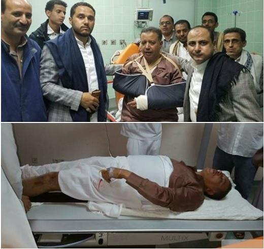بالصور.. الحوثيون يعتدون على محامي المخلوع صالح ويكسرون اطرافه