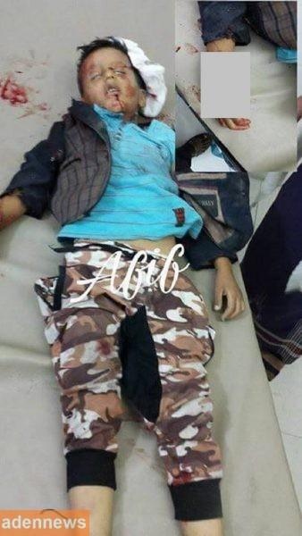 مجزرة جديدة اليوم ترتكبها مليشيا الحوثي في تعز