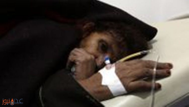منظمة الصحة العالمية تعلن وصول اكثر من 43 طن من الادوية والمستلزمات الطبية الى اليمن