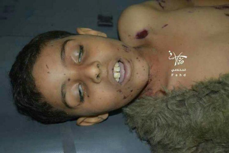 مقتل 5 اطفال واصابة 3 اخرين في قصف لمليشيا الحوثي على حي بير باشا غرب مدينة تعز
