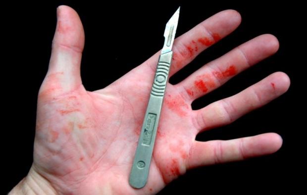 الحديدة.. في جريمة بشعة ومشهودة.. عنصر حوثي يبتر بالمشرط عنق وبطن طفل