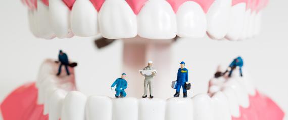 تعرف على 4 اسباب لآلام الاسنان غير التسوس
