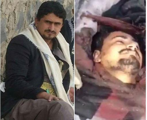 بالصورة.. هذه هي حقيقة مقتل صهر الحوثي المدعو يوسف المداني