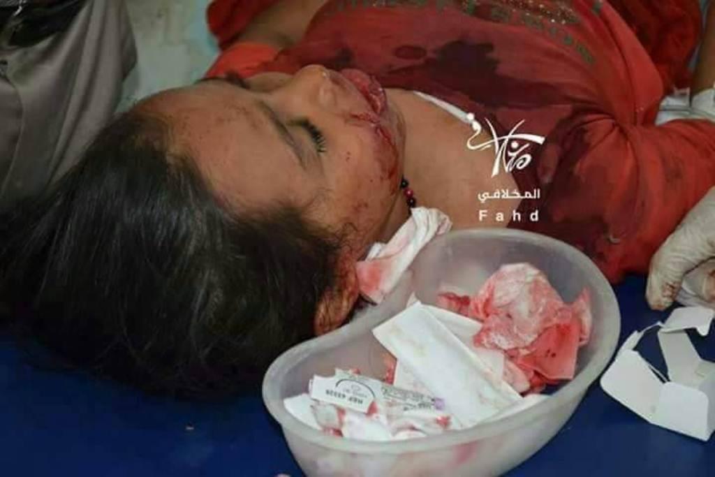 مليشيا الحوثي تشن قصف على مديرية المواسط في تعز وإصابة 4 اطفال وشخص خامس