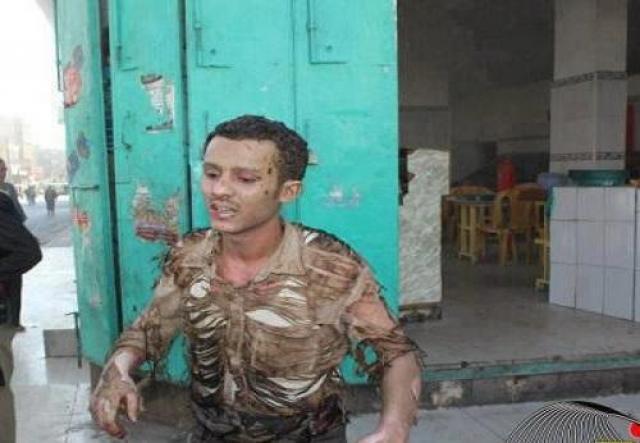 نجاة عمال محطة بنزين من الموت بعد انفجار اسطوانة غاز في صنعاء