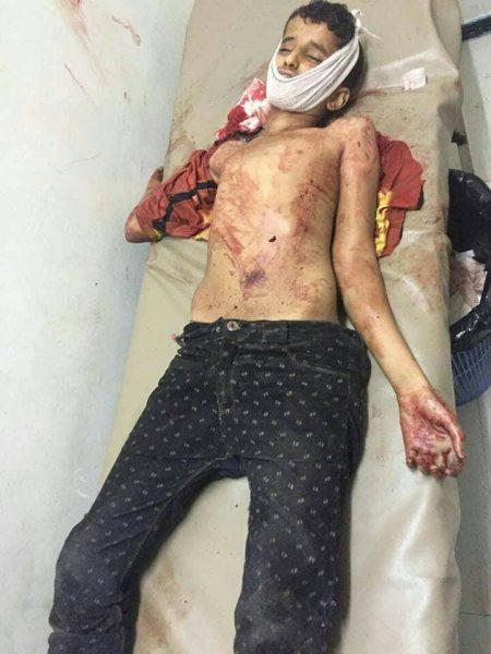 إنفجار عبوة ناسفة في تعز يؤدي إلى مقتل مدنيين وإصابة عسكريين