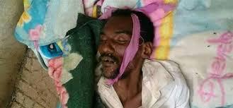 وفاة سجين في السجن المركزي بمحافظة حجة متأثرا بمرض السل نتيجة إهماله من قبل المليشيات