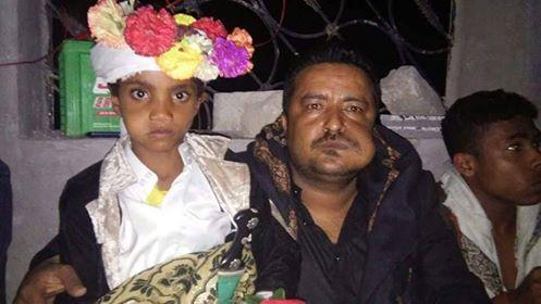 أصغر عريس في اليمن طفل في الثامنة من عمره يزف إلى عروسه في ذمار (صور)