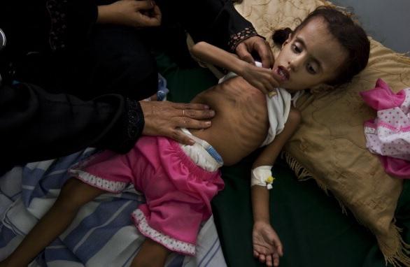 """3 نتائج كارثية على اليمن سببها وباء """"الكوليرا"""""""