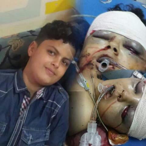 قيادي حوثي يقتل نجل عميد كلية التربية بمحافظة إب بسبب كرة القدم