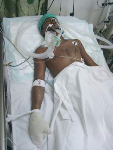 إصابة شاب إصابة خطيرة برصاص مسلح حوثي في الحديدة بسبب رفضه إعطائه كمية من الثلج