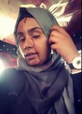 """طالبات جامعة صنعاء ينتفضن في وجه """"المليشات الحوثية"""""""