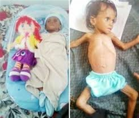 """""""غدير"""" ظلت تصارع الموت لأسابيع.. وفاة طفلة بسبب الجوع بين ذراعي والديها في الضالع"""