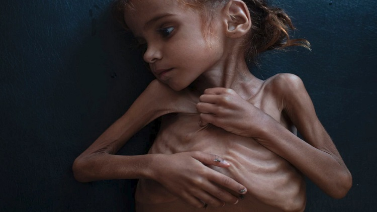 الامم المتحدة: أطفال اليمن يموتون من الجوع والمرض بسبب منع وصول المساعدات