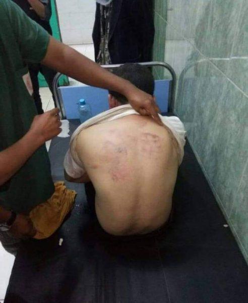 مسلحون يتبعون متنفذ في أمن عدن يخطفون مواطن ويعذبونه في سجن سري (صور)