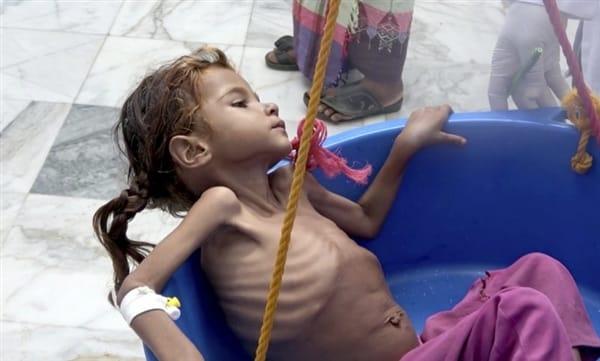 """محافظة لحج: مئات الاطفال مهددون بالموت جوعاً في منطقة """"ريمة"""""""