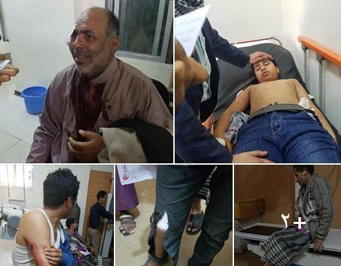 عاجل.. مليشيات الحوثي تستهدف ساحة الحرية بتعز واصابة 6 مدنيين