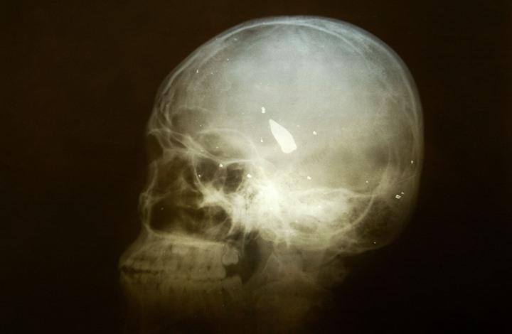 في دراسة جديدة.. تعرف على الرابط بين نوع من البدانة وحجم الدماغ
