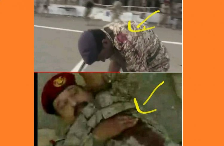شاهد الصورة التي أكدت حقيقة اصابة اللواء طماح بمسدس كاتم صوت في حادثة تفجير قاعدة العند