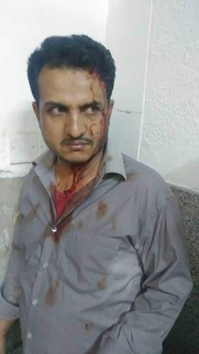 Houthi pressures to acquit a houthi gunman from the attack on a doctor