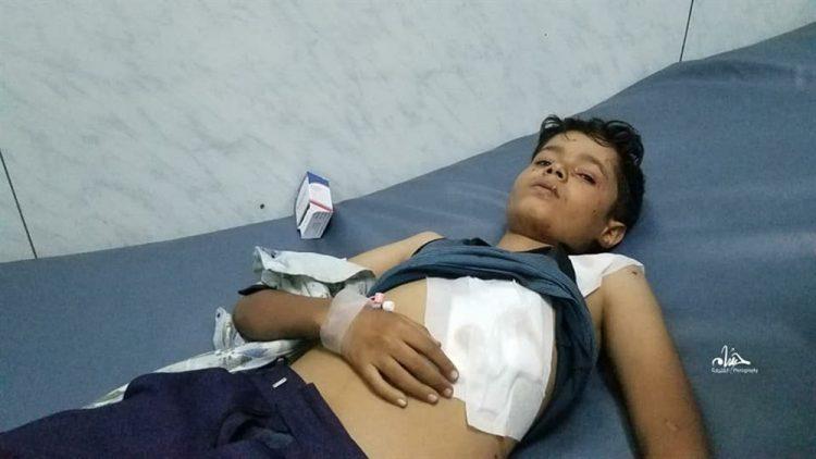 مركز حقوقي يرصد في تقرير له مقتل وإصابة 77 مدنيا في تعز خلال يونيو الفائت