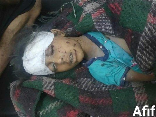 مليشيا الحوثي تقصف قرى صبر الموادم ومقتل طفلتين وإصابة والدتهما جراء القصف