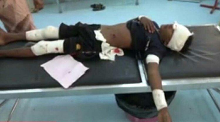 مليشيا الحوثي تطلق النار على طفل يرعى الأغنام في حيس وتصيب عينه اليمنى