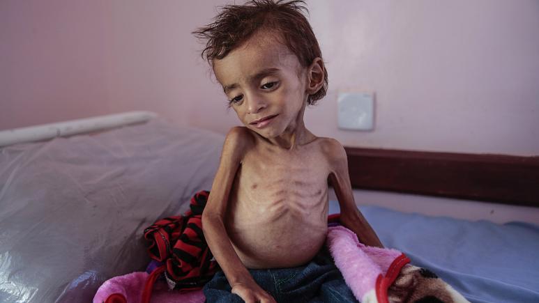 """""""أسوشيتد برس"""".. الحوثيون عرقلوا وصول نصف المساعدات الغذائية التي قدمتها الأمم المتحدة لليمن"""