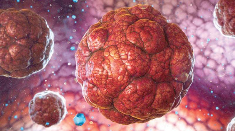 علماء يطورون عقار جديد سيحدث ثورة في علاج سرطان البروستاتا