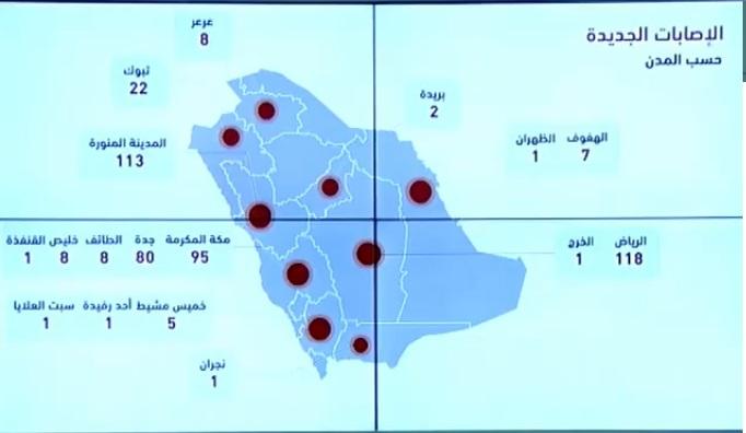 """الصحة السعودية تعلن 472 اصابة جديدة و44 تعافي و6 وفيات بسبب فيروس كورونا اليوم الاثنين 13-4-2020 """"الحالات بحسب المدن"""""""