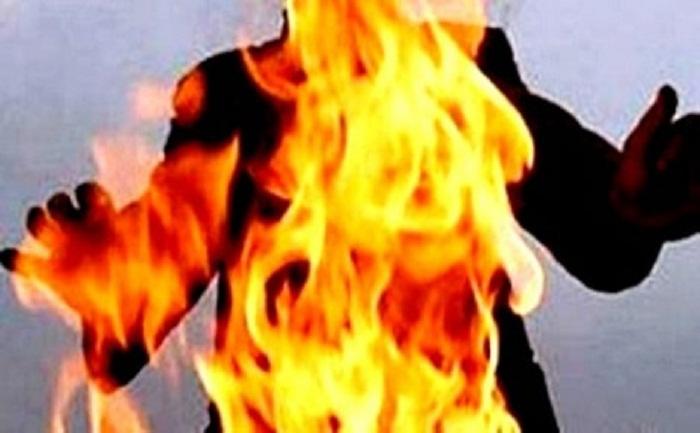 في جريمة بشعة.. حوثيون يشعلون النار في جسد مواطن بمحافظة ذمار ويمنعون اسعافه (تفاصيل الجريمة)