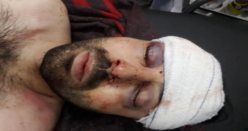 """عدن.. مواطنون يعثرون على مسؤول في الهلال الأحمر التركي مصاباً بجروح خطيرة """"تفاصيل"""""""