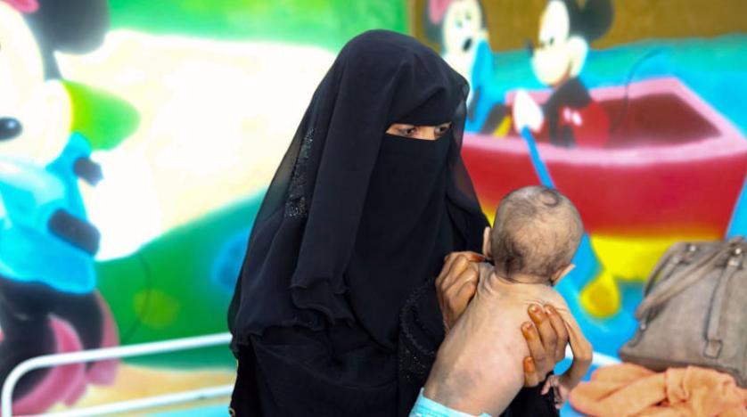 بالتزامن مع تفشي الأمراض والاوبئة الخطيرة.. تهاوي قطاع الصحة في اليمن يرفع معدلات سوء التغذية عند الأطفال