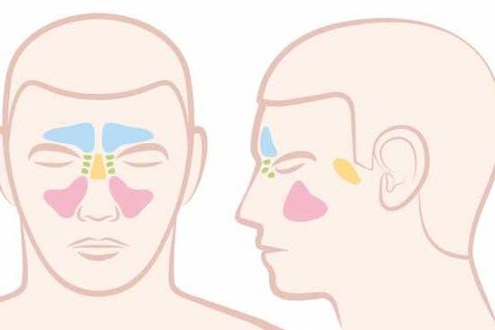 اذا كنت تعاني من التهاب الجيوب الأنفية فعليك بهذه العلاجات المنزلية