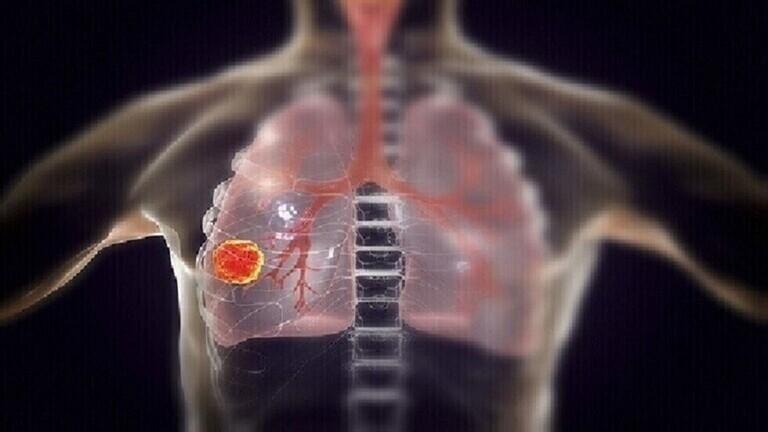 """تعرفوا على خمس علامات تحذيرية """"مفاجئة"""" لسرطان الرئة غالبا ما نتجاهلها"""