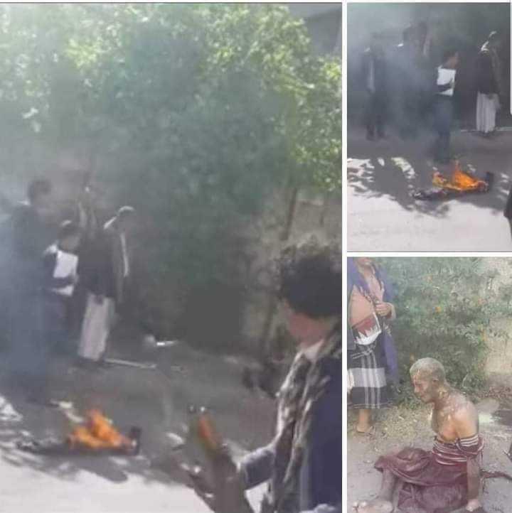 احتجاجا على بقاء نجله في أحد السجون.. وفاة مواطن إضرم النار في جسده في محافظة إب