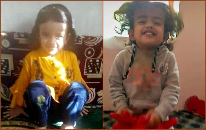 "Due to houthi attack: a charred body of the Yemeni girl ""Lyan"" shocked all Yemen"